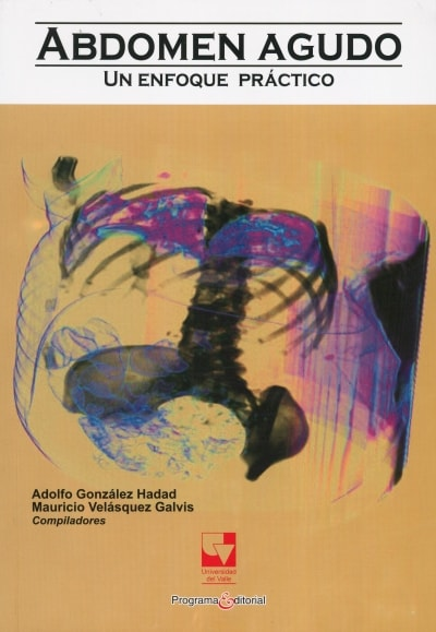 Libro: Abdomen agudo. Un enfoque práctico | Autor: Adolfo González Hadad | Isbn: 9789586708111